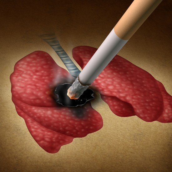 COPD stoppen met roken